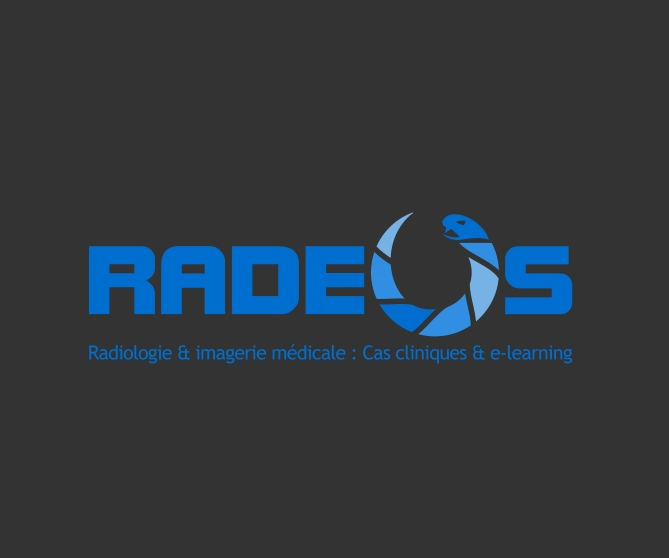 radeos_ltc